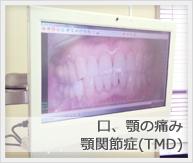 口、顎の痛み・顎関節症(TMD)